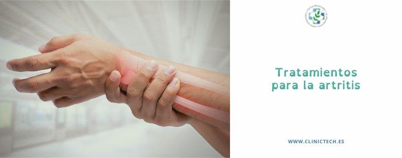 Tratamientos para la artritis